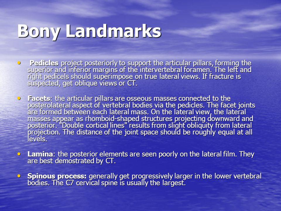 Bony Landmarks