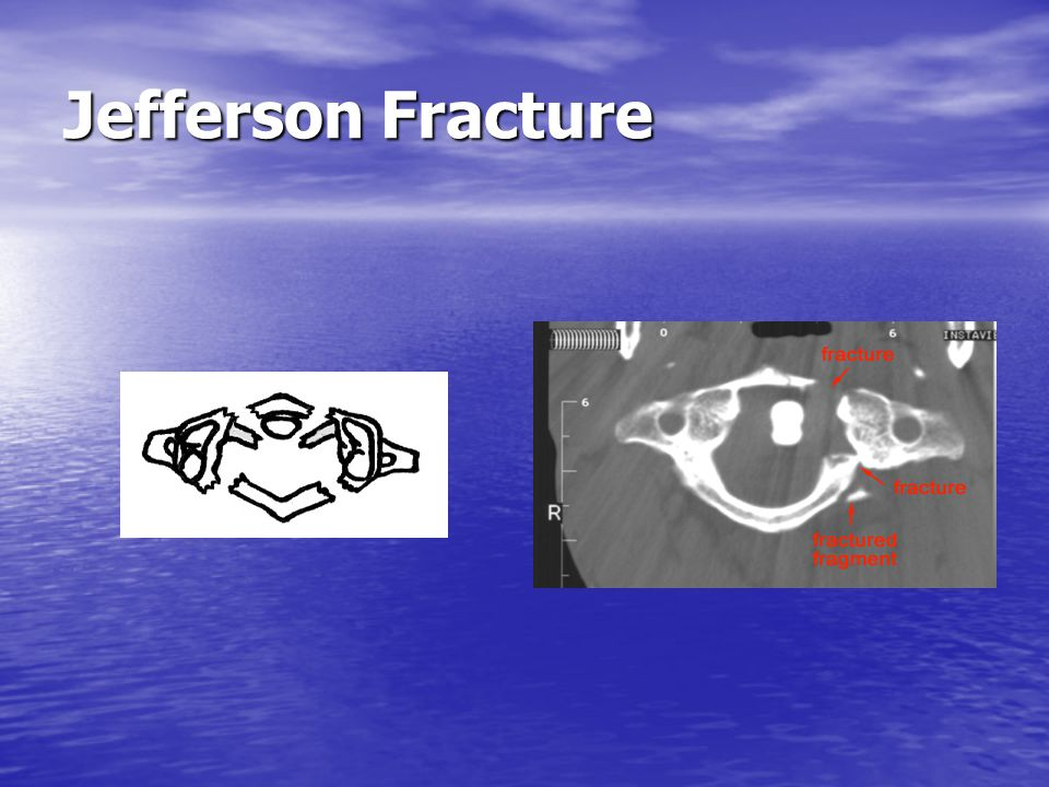 Odontoid Fractures Radiographic features: fracture is best seen on lateral view.