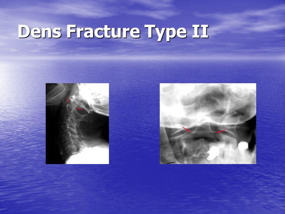 Dens Fracture Type III Type III Odontoid Fracture: fracture through base of odontoid into body of axis.