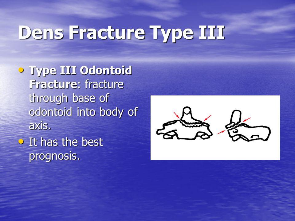 Dens Fracture Type III