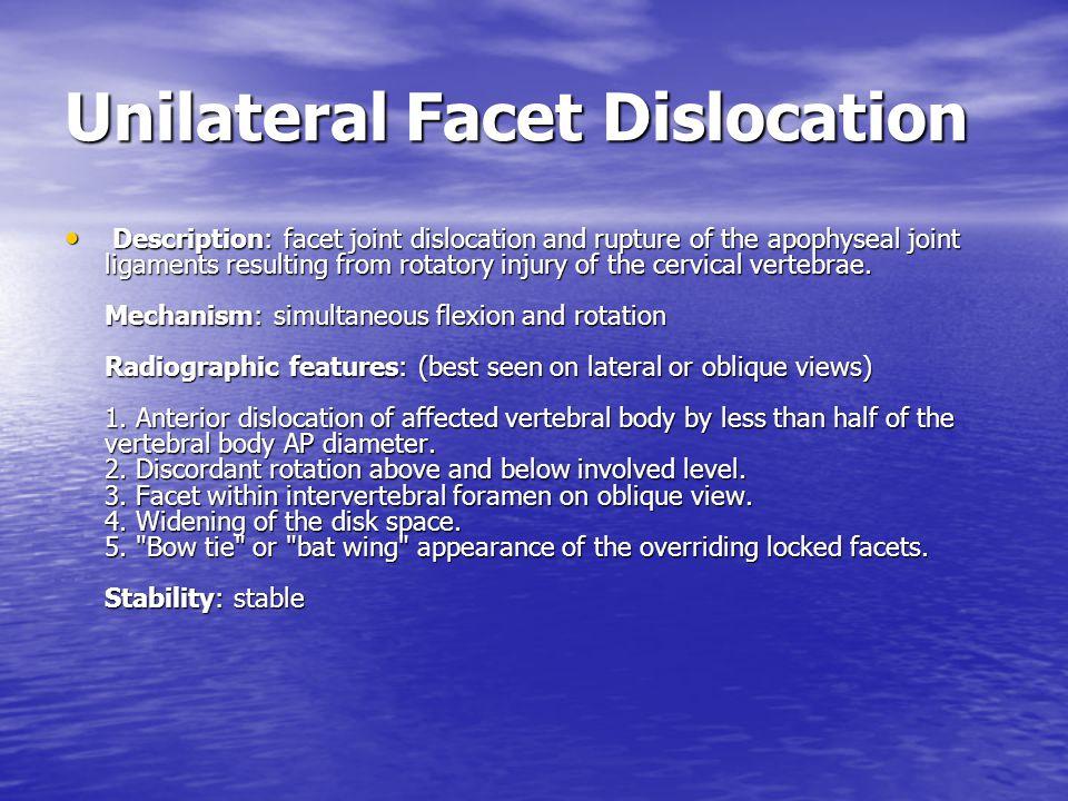 Unilateral Facet Dislocation