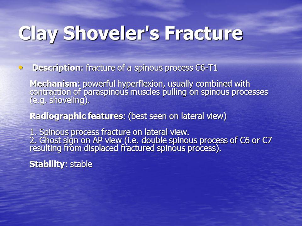 Clay Shoveler s Fracture