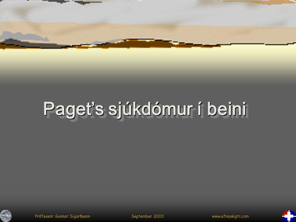 Prófessor Gunnar Sigurðsson September 2003 www.efnaskipti.com Paget's sjúkdómur í beini