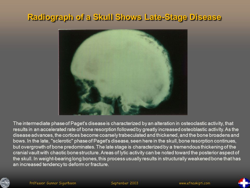 Prófessor Gunnar Sigurðsson September 2003 www.efnaskipti.com Radiograph of a Skull Shows Late-Stage Disease The intermediate phase of Paget s disease is characterized by an alteration in osteoclastic activity, that results in an accelerated rate of bone resorption followed by greatly increased osteoblastic activity.