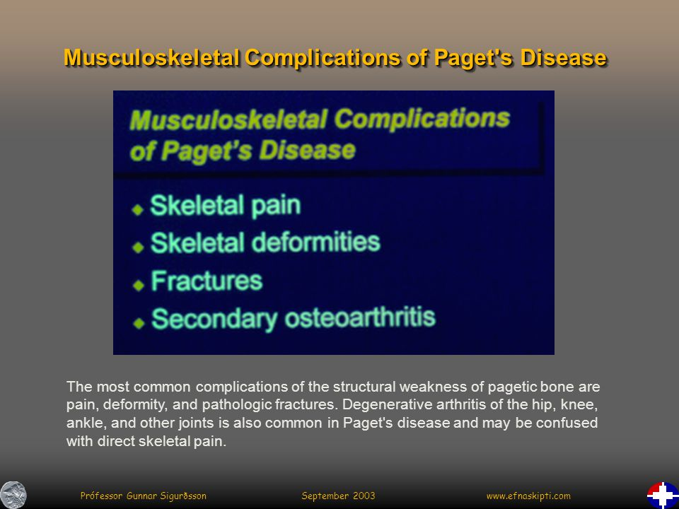 Prófessor Gunnar Sigurðsson September 2003 www.efnaskipti.com Musculoskeletal Complications of Paget s Disease The most common complications of the structural weakness of pagetic bone are pain, deformity, and pathologic fractures.