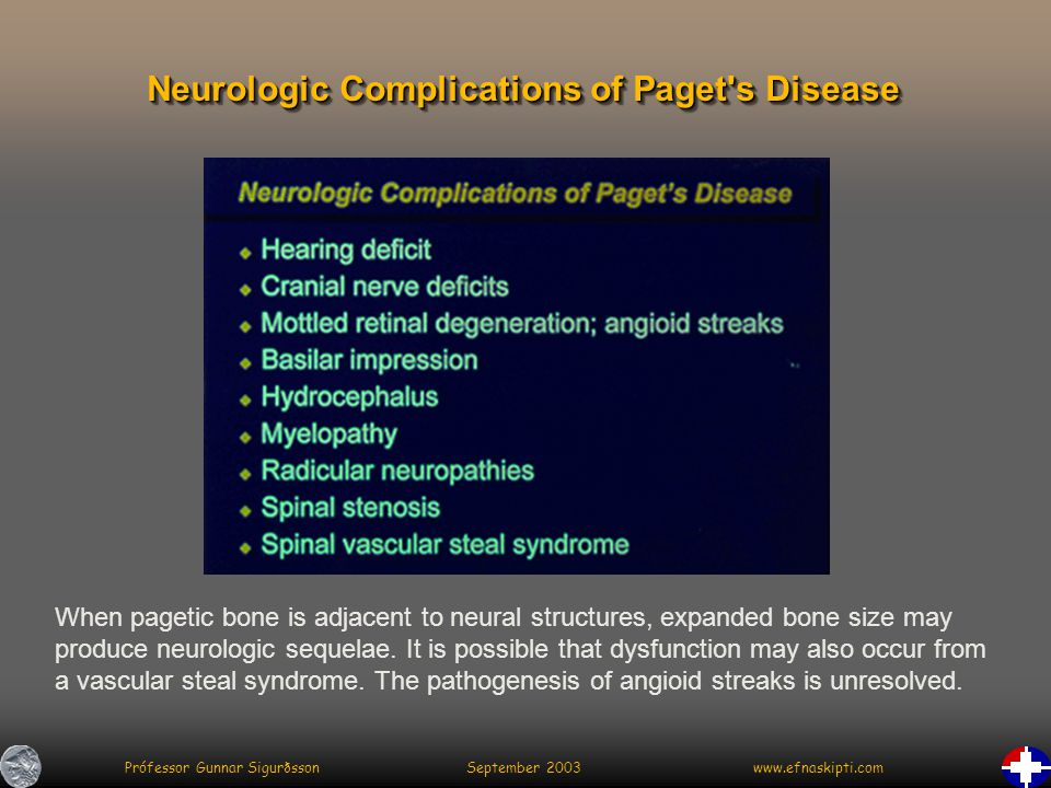 Prófessor Gunnar Sigurðsson September 2003 www.efnaskipti.com Neurologic Complications of Paget s Disease When pagetic bone is adjacent to neural structures, expanded bone size may produce neurologic sequelae.