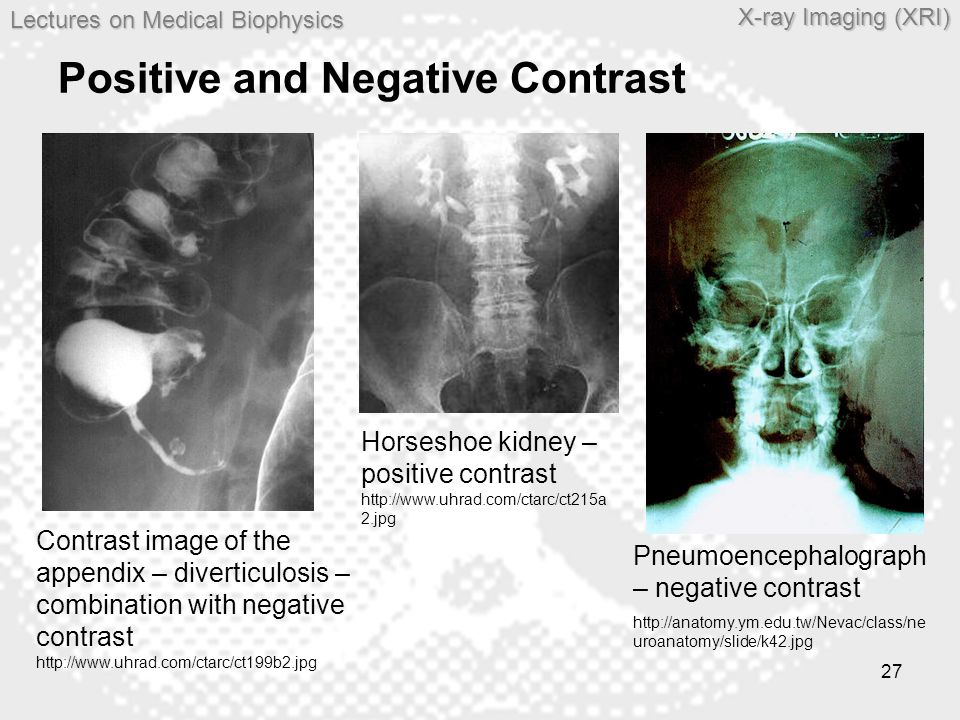 Lectures on MedicalBiophysics Lectures on Medical Biophysics X-ray Imaging (XRI) 27 Positive and Negative Contrast Contrast image of the appendix – di