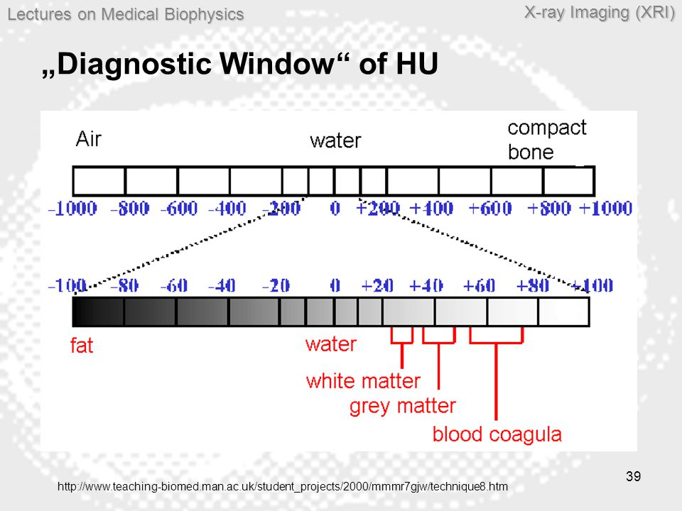 "Lectures on MedicalBiophysics Lectures on Medical Biophysics X-ray Imaging (XRI) 39 ""Diagnostic Window"" of HU <> http://www.teaching-biomed.man.ac.uk/"