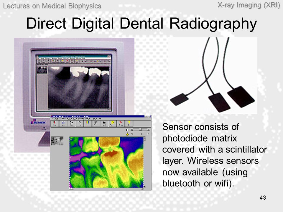 Lectures on MedicalBiophysics Lectures on Medical Biophysics X-ray Imaging (XRI) 43 Direct Digital Dental Radiography Sensor consists of photodiode ma