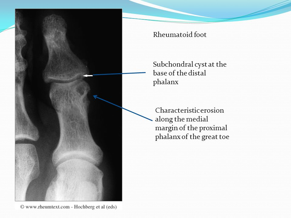 Rheumatoid foot Characteristic erosion along the medial margin of the proximal phalanx of the great toe Subchondral cyst at the base of the distal pha