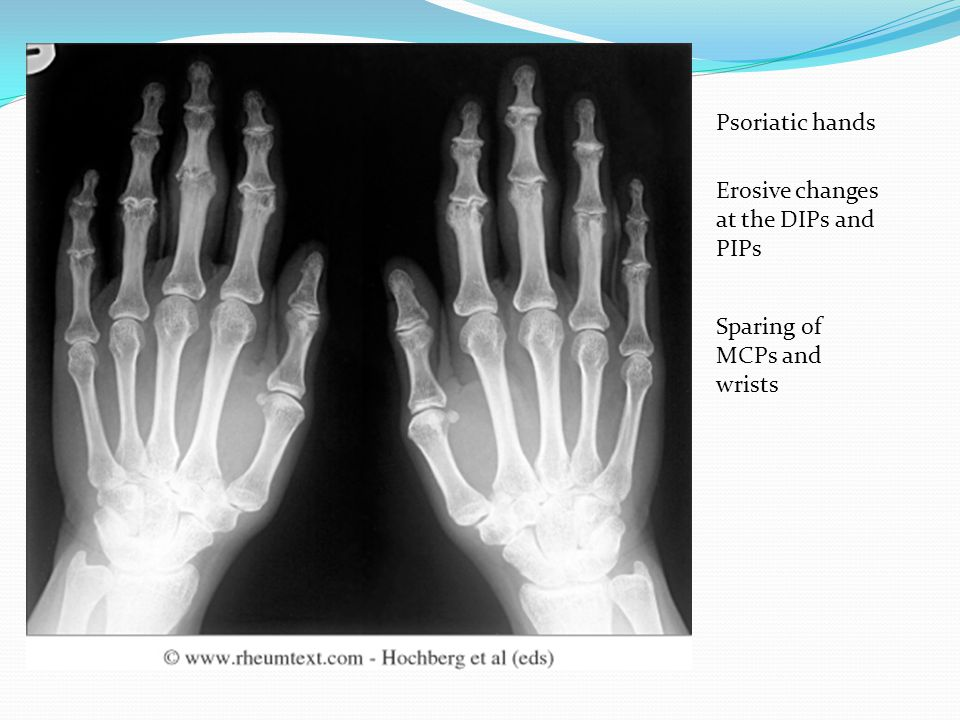 Psoriatic hands Erosive changes at the DIPs and PIPs Sparing of MCPs and wrists