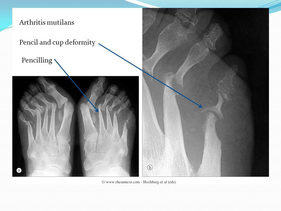 Arthritis mutilans Pencil and cup deformity Pencilling