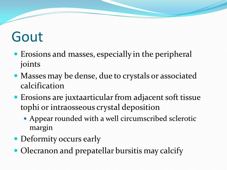Gout Erosions and masses, especially in the peripheral joints Masses may be dense, due to crystals or associated calcification Erosions are juxtaartic