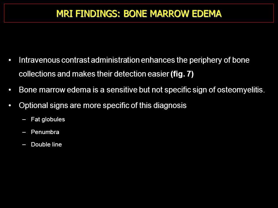 MRI FINDINGS: BONE MARROW EDEMA Intravenous contrast administration enhances the periphery of bone collections and makes their detection easier (fig.