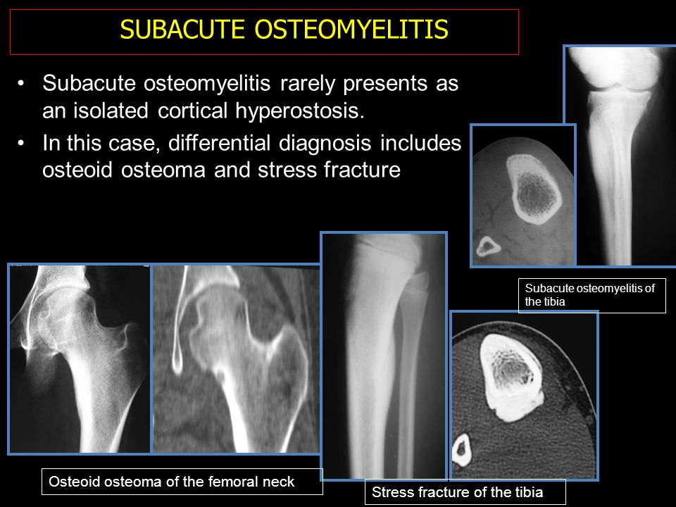 Subacute osteomyelitis rarely presents as an isolated cortical hyperostosis. In this case, differential diagnosis includes osteoid osteoma and stress