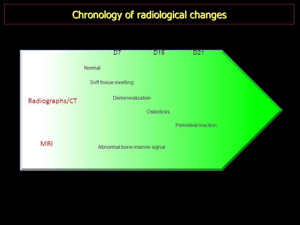Chronology of radiological changes Normal Soft tissue swelling Demineralization Osteolysis Periosteal reaction MRI Radiographs/CT Abnormal bone marrow