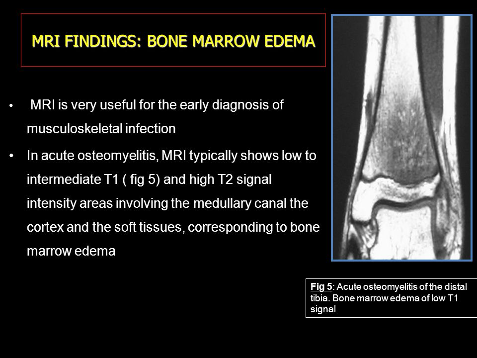 MRI FINDINGS: BONE MARROW EDEMA A B In subacute osteomyelitis, signal abnormalities are better circumscribed: intraosseous low T1 and high T2 signal intensity collections, sometimes containing a sequestrum of low T1 and T2 signal intensity (fig.6) In chronic osteomyelitis, the bone shows a heterogenous signal associating low T1 and high T2 intensity areas (fluid) and low T1 and T2 areas (sclerosis).