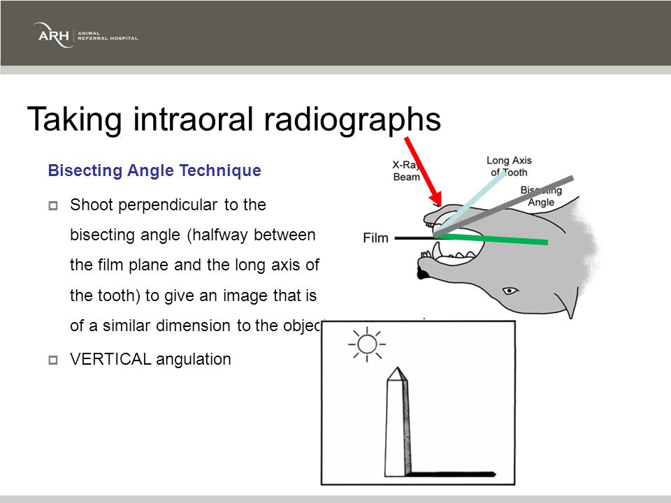 Bisecting Angle Technique  Shoot perpendicular to the bisecting angle (halfway between the film plane and the long axis of the tooth) to give an image that is of a similar dimension to the object  VERTICAL angulation Taking intraoral radiographs