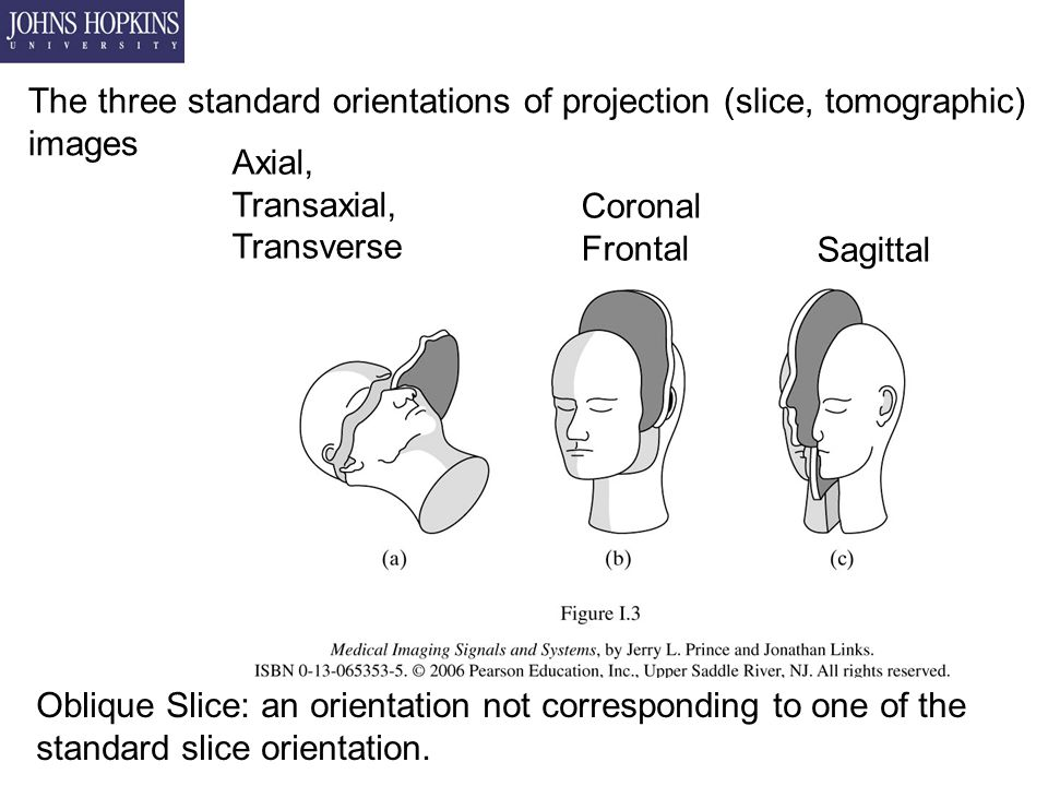 The three standard orientations of projection (slice, tomographic) images Axial, Transaxial, Transverse Coronal Frontal Sagittal Oblique Slice: an orientation not corresponding to one of the standard slice orientation.