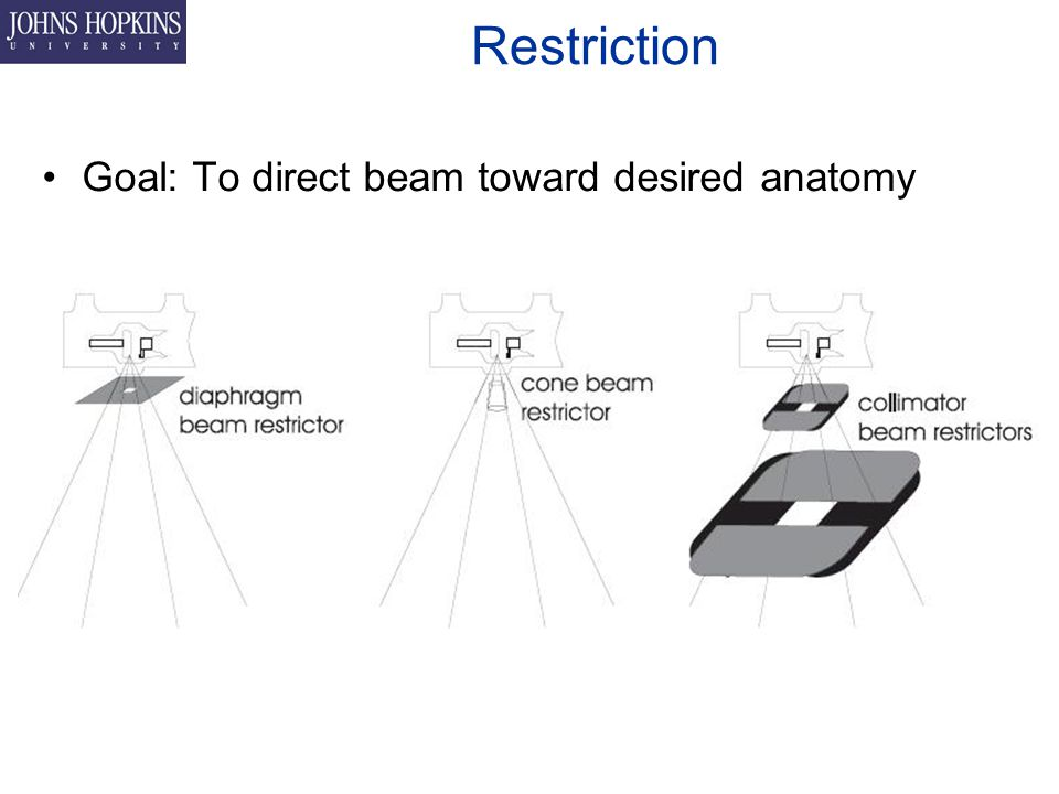 Restriction Goal: To direct beam toward desired anatomy