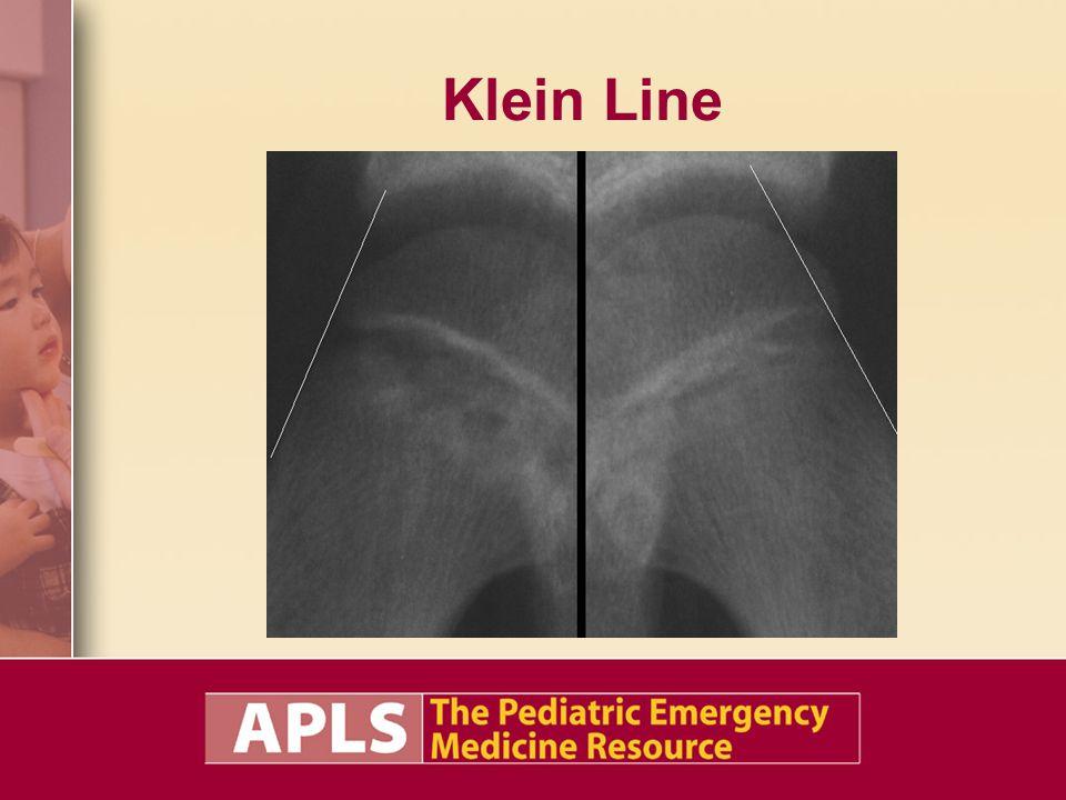 Klein Line