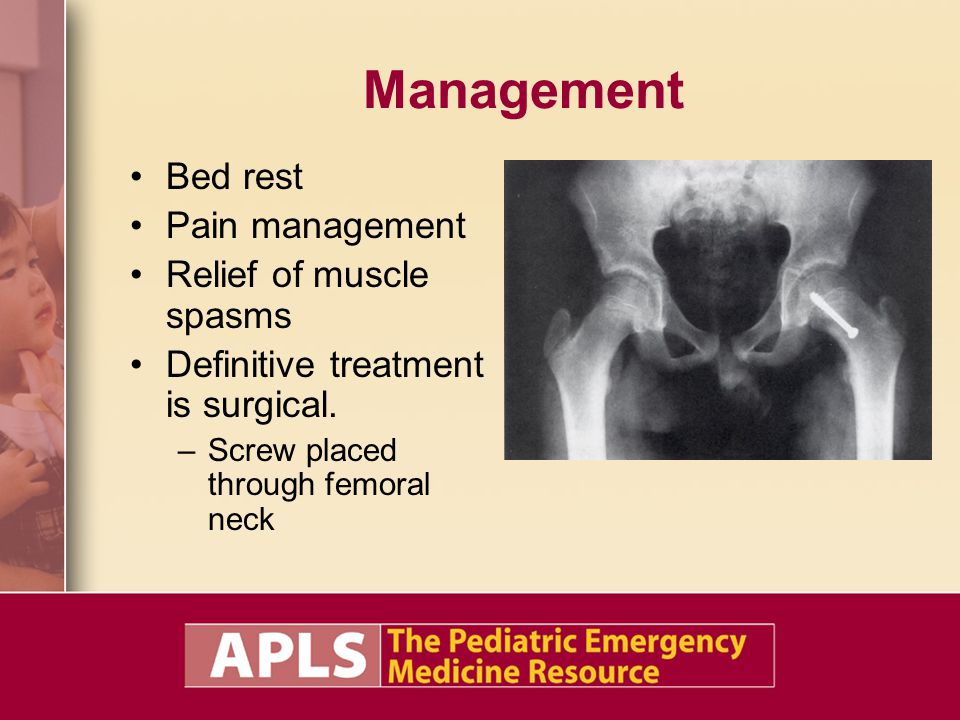 Management Bed rest Pain management Relief of muscle spasms Definitive treatment is surgical. –Screw placed through femoral neck