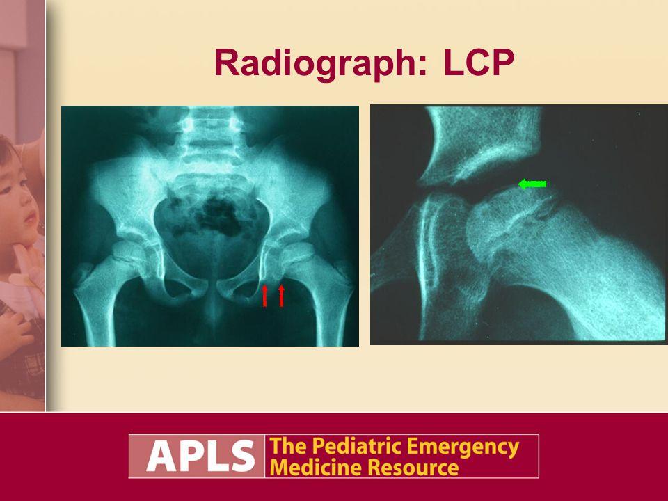 Radiograph: LCP