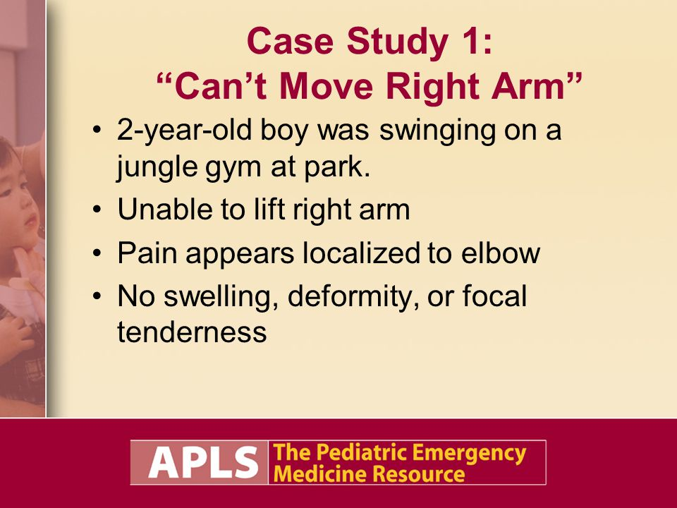 Case Study 1: Can't Move Right Arm 2-year-old boy was swinging on a jungle gym at park.