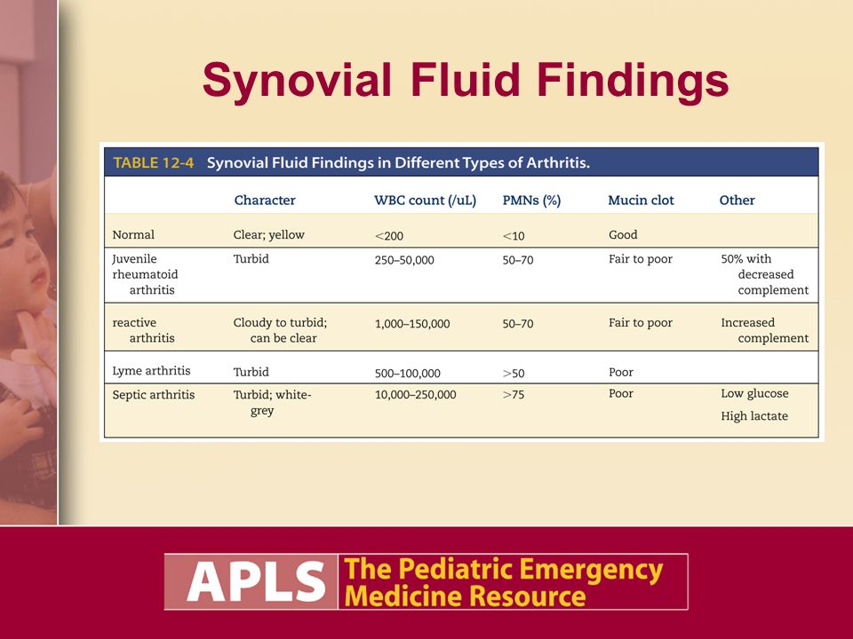 Synovial Fluid Findings