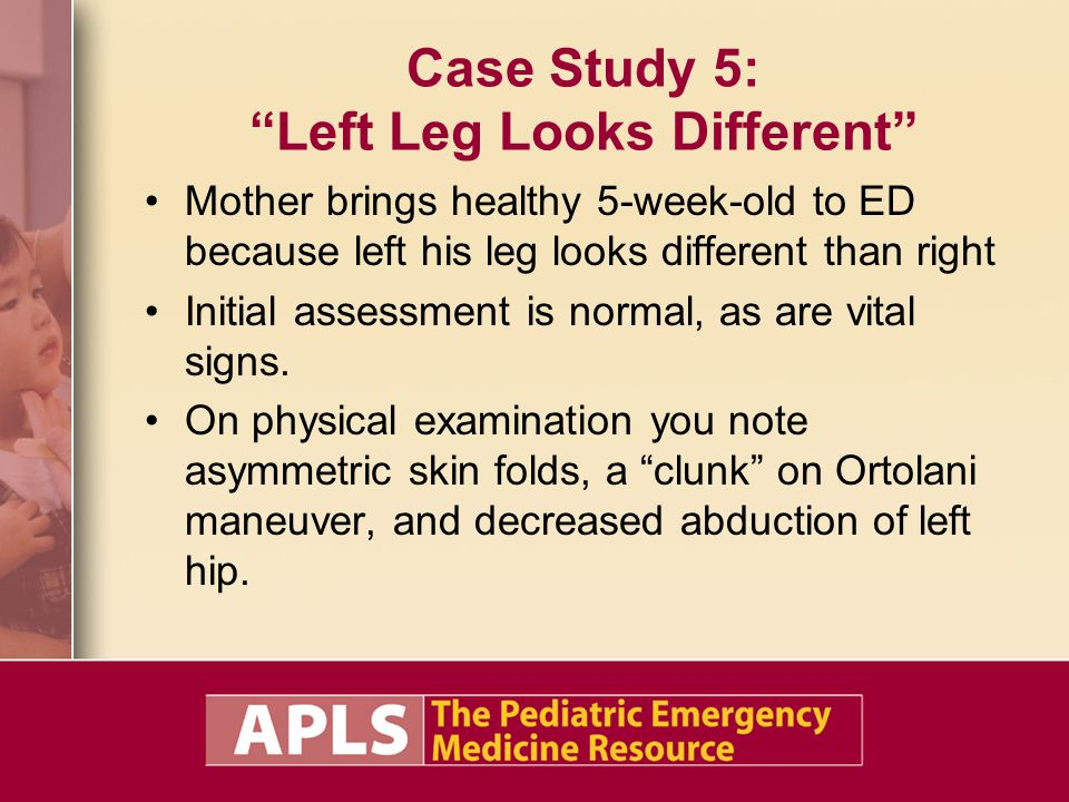 Case Study 5: Left Leg Looks Different Mother brings healthy 5-week-old to ED because left his leg looks different than right Initial assessment is normal, as are vital signs.