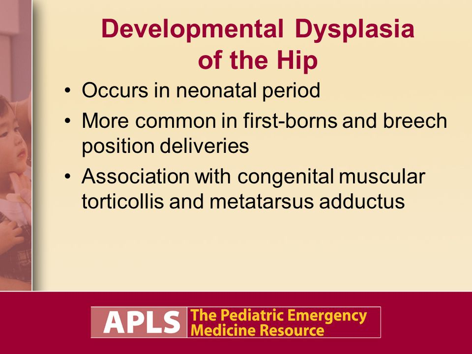 Developmental Dysplasia of the Hip Occurs in neonatal period More common in first-borns and breech position deliveries Association with congenital muscular torticollis and metatarsus adductus