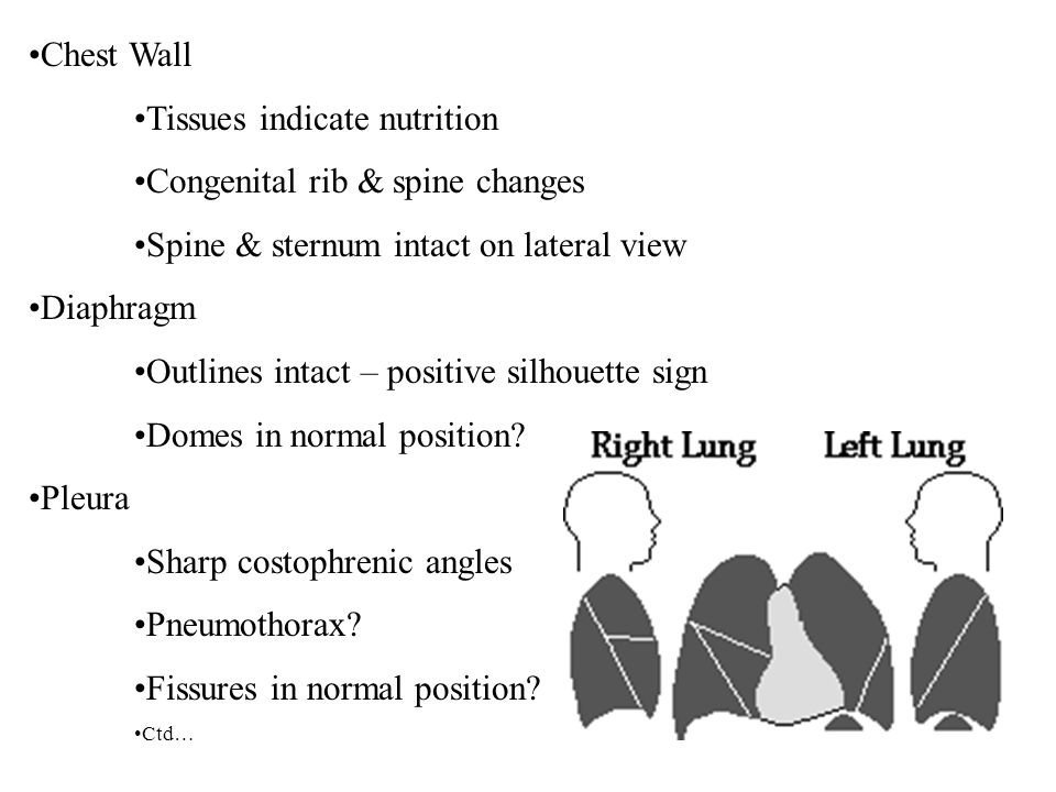 Chest Wall Tissues indicate nutrition Congenital rib & spine changes Spine & sternum intact on lateral view Diaphragm Outlines intact – positive silho