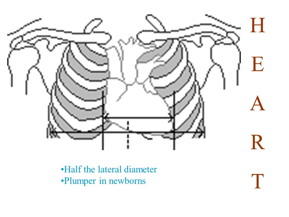 The fulcrum for movement of this lever arm is the upper cervical spine.