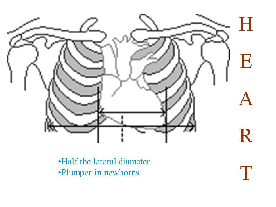 Systematic Analysis 1.Bones, soft tissue, diaphragm a.