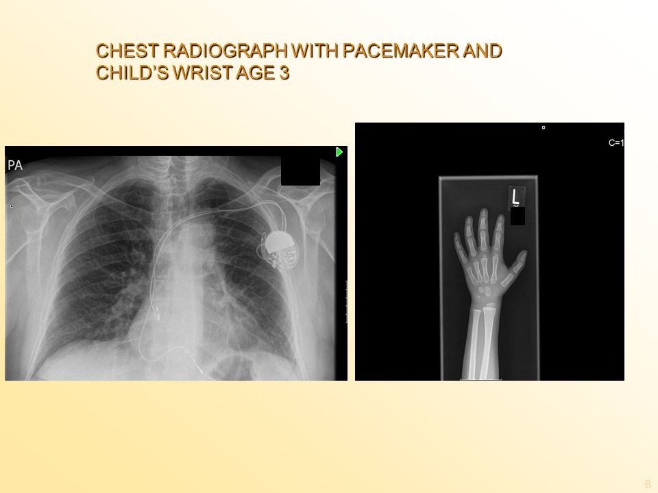 CHEST RADIOGRAPH WITH PACEMAKER AND CHILD'S WRIST AGE 3 8