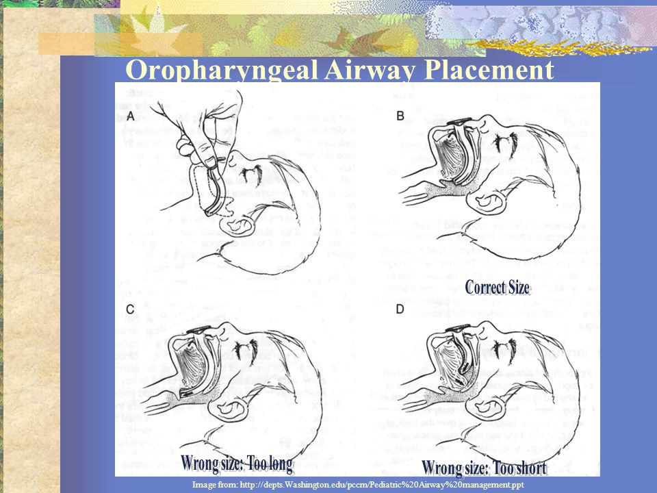 Oropharyngeal Airway Placement Image from: http://depts.Washington.edu/pccm/Pediatric%20Airway%20management.ppt