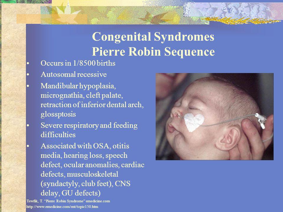 Congenital Syndromes Pierre Robin Sequence Occurs in 1/8500 births Autosomal recessive Mandibular hypoplasia, micrognathia, cleft palate, retraction o