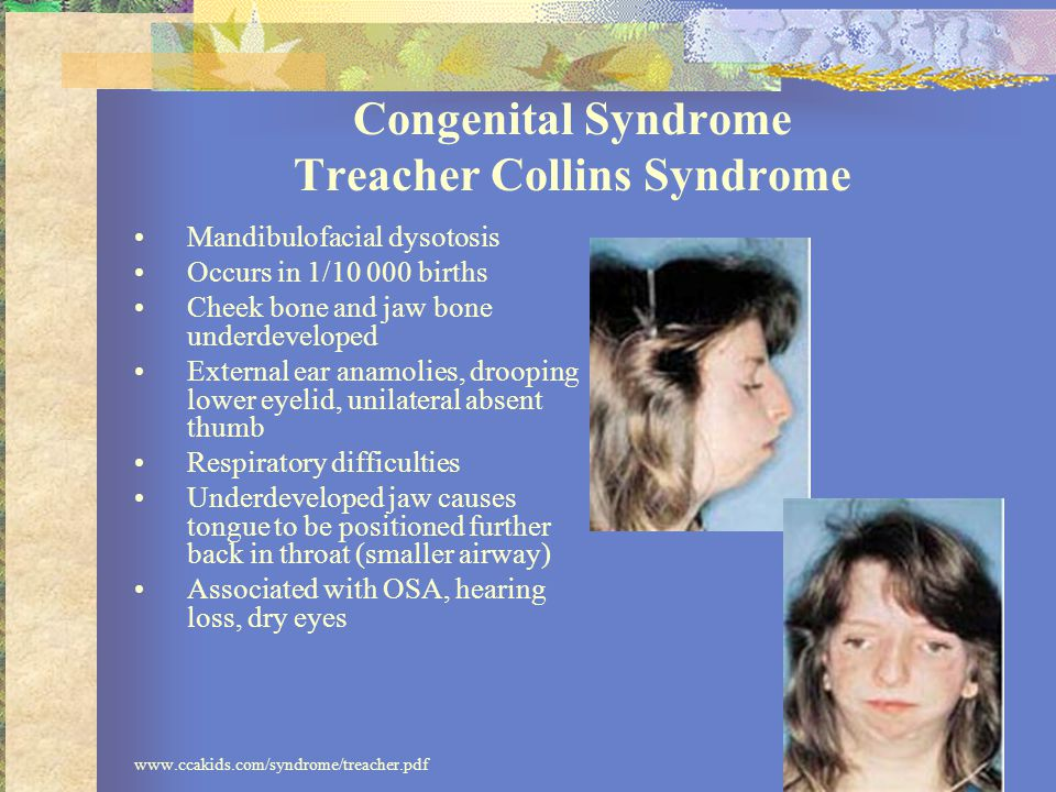 Congenital Syndrome Treacher Collins Syndrome Mandibulofacial dysotosis Occurs in 1/10 000 births Cheek bone and jaw bone underdeveloped External ear