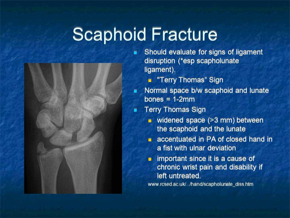 Scaphoid Fracture Should evaluate for signs of ligament disruption (*esp scapholunate ligament).