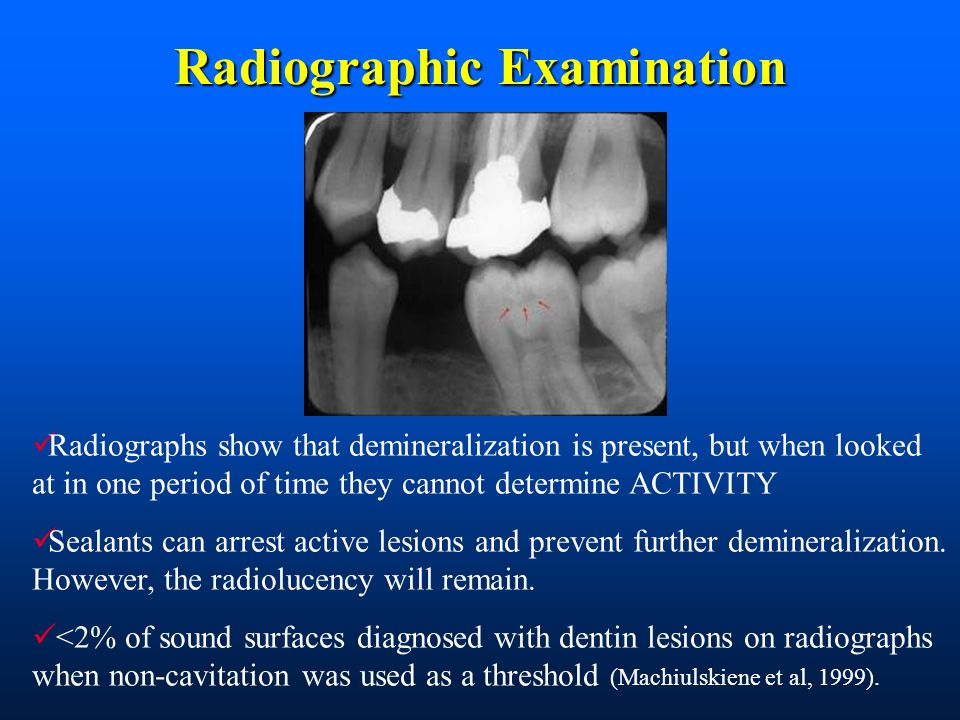 Radiographic Examination Radiographs show that demineralization is present, but when looked at in one period of time they cannot determine ACTIVITY Sealants can arrest active lesions and prevent further demineralization.