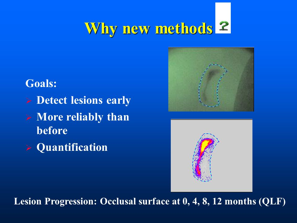 Why new methods Goals:  Detect lesions early  More reliably than before  Quantification Lesion Progression: Occlusal surface at 0, 4, 8, 12 months (QLF)