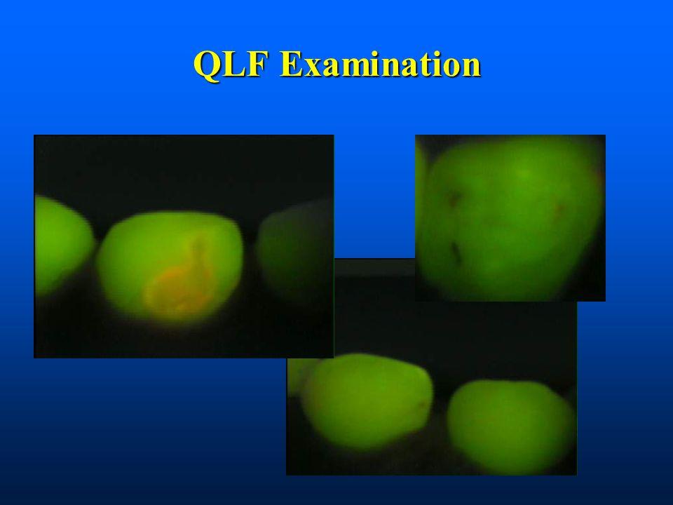 QLF Examination