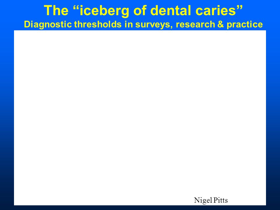 Nigel Pitts The iceberg of dental caries Diagnostic thresholds in surveys, research & practice