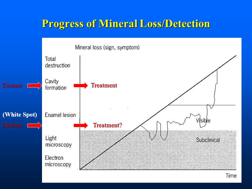 Progress of Mineral Loss/Detection (White Spot)Disease Treatment Disease Treatment