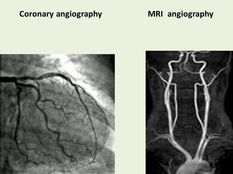 Coronary angiography MRI angiography