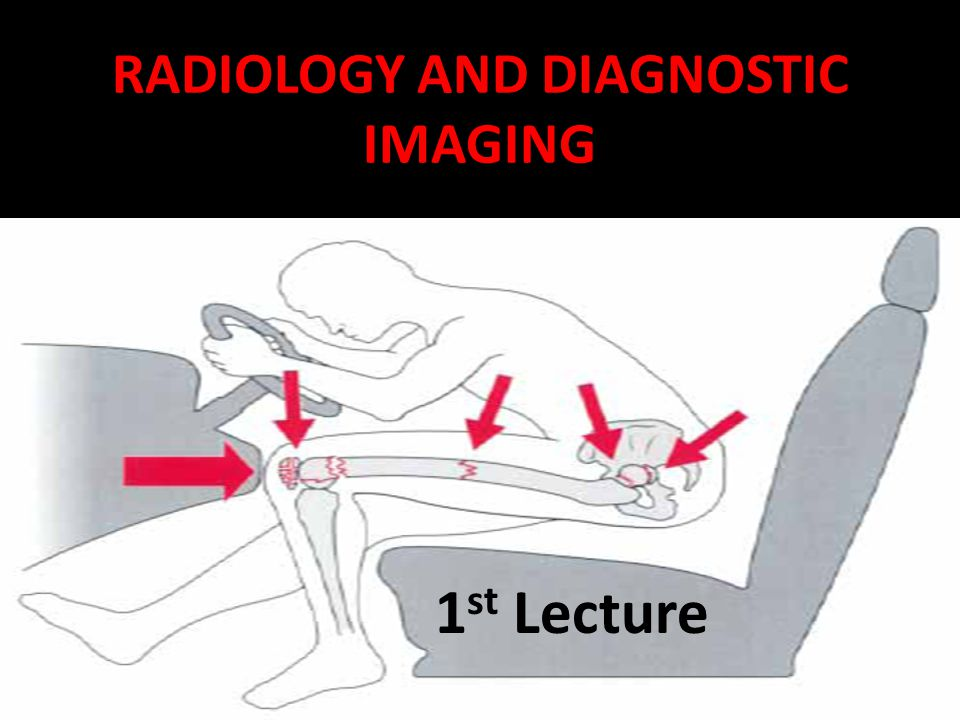 46 Voiding Cystourethrography Pronounced – (VOYD-ing sis-toh-yoo-ree-THROG-rah-fee) Defined – X-ray visualization of the bladder and urethra during the voiding process, after the bladder has been filled with a contrast material