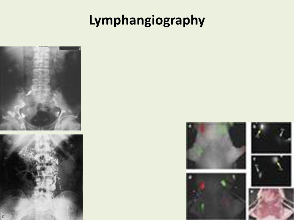 Lymphangiography