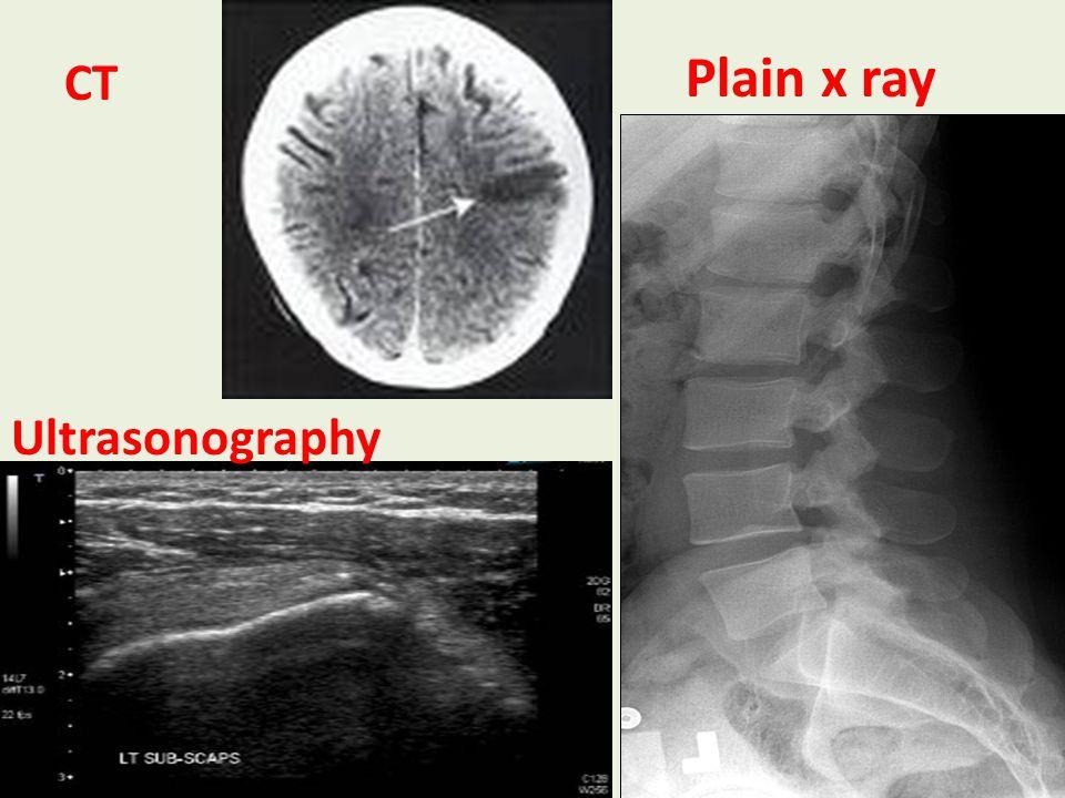 Cholecystography