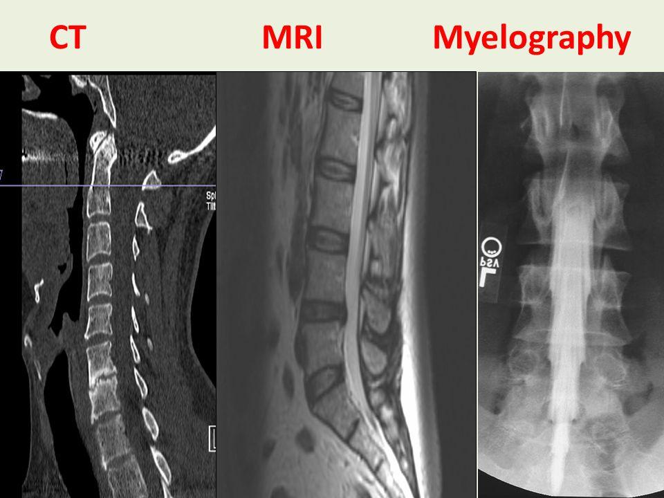 CT MRI Myelography