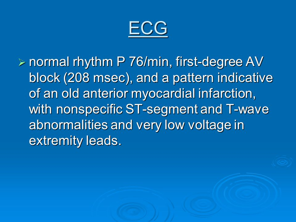 ECG  normal rhythm P 76/min, first-degree AV block (208 msec), and a pattern indicative of an old anterior myocardial infarction, with nonspecific ST-segment and T-wave abnormalities and very low voltage in extremity leads.